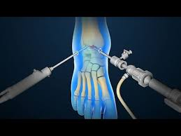 Foot and ankle surgery – Best Orthopedic doctor in Jaipur