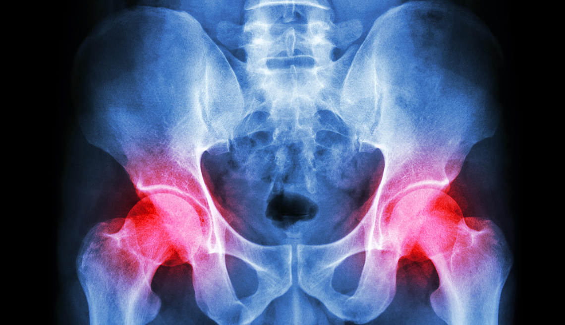 Hip replacement- best orthopedic doctor in jaipur
